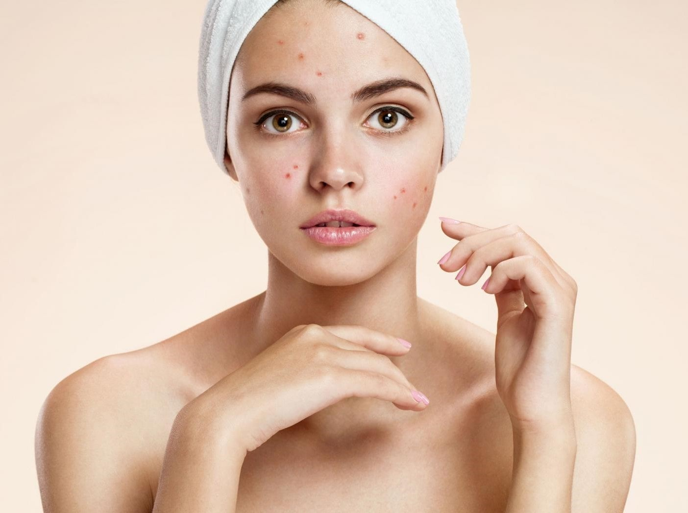 Τί να χρησιμοποιήσετε και πώς να φροντίσετε το δέρμα που είναι επηρεασμένο από ακμή;